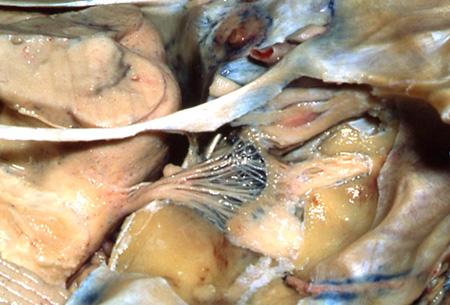 第4回九州頭蓋底外科微小解剖セミナー