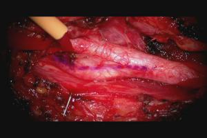 頸動脈狭窄1