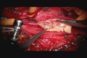 頸動脈狭窄2