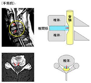 頚椎椎間板ヘルニア1