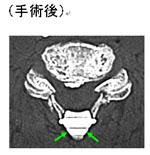 頚椎後縦靭帯骨化症2