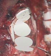 腫瘍摘出腔へギリアデルの留置