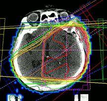 放射線治療照射野